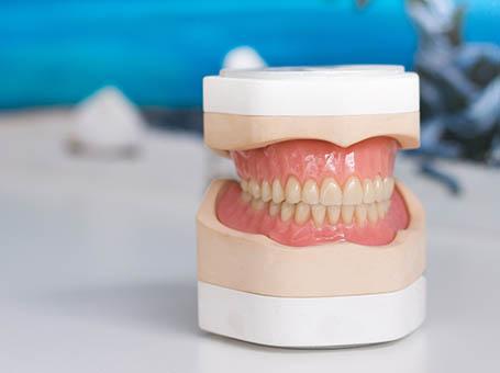 Herrausnehmbarer Zahnersatz